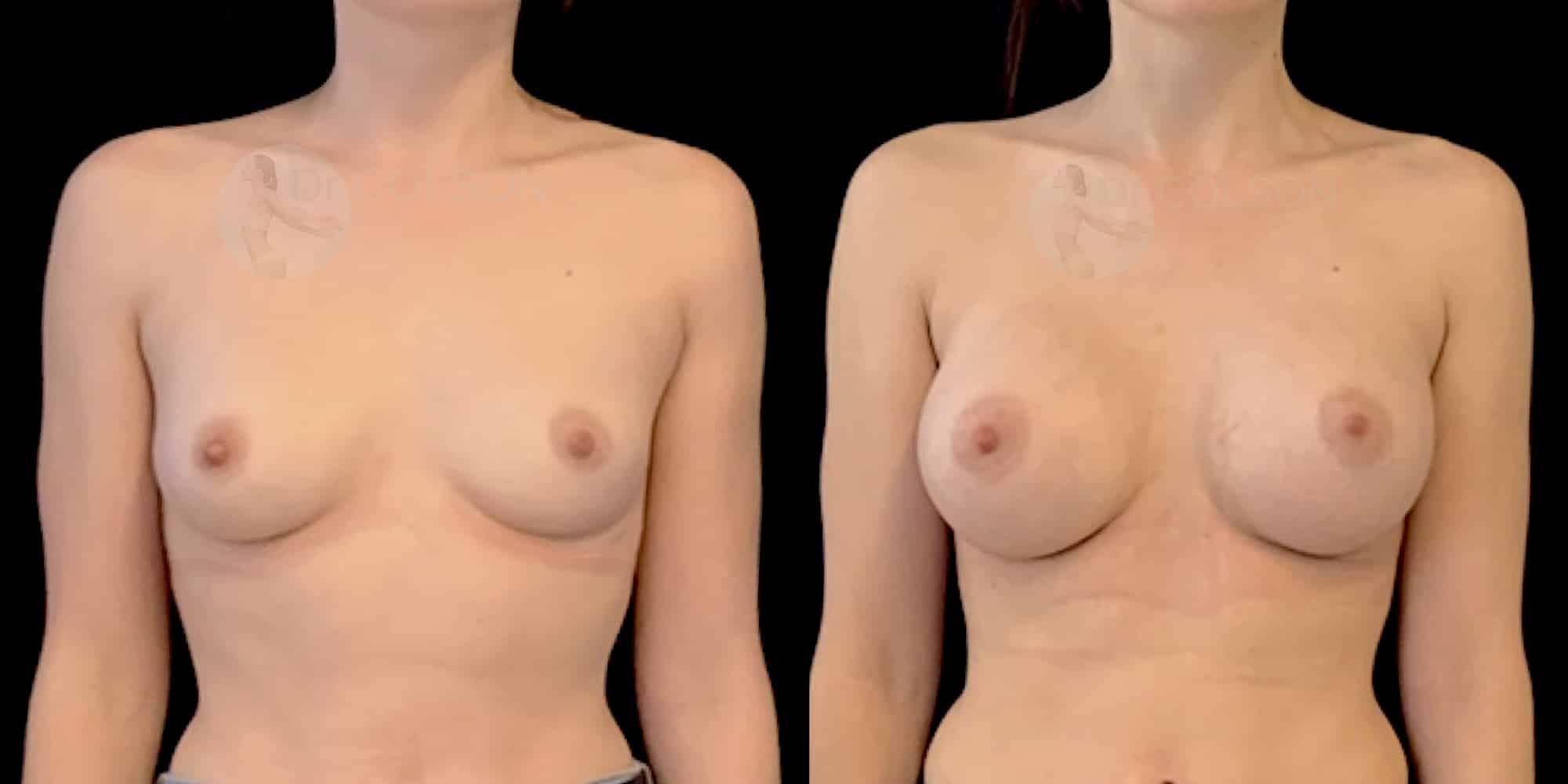 Dr Colson - Chirurgie sein - Augmentation Mammaire Face