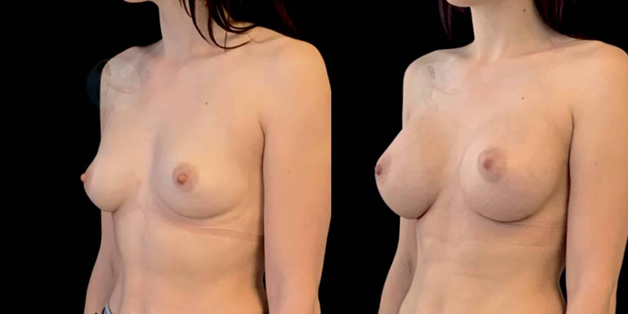 Dr Colson - Chirurgie sein - Augmentation Mammaire Trois Quart