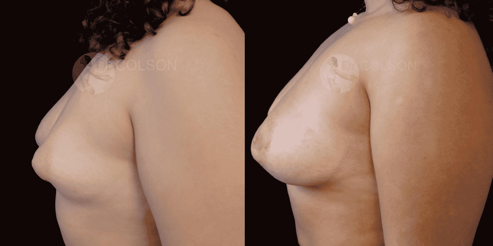 Dr Colson - Chirurgie sein - Asymetrie Profil
