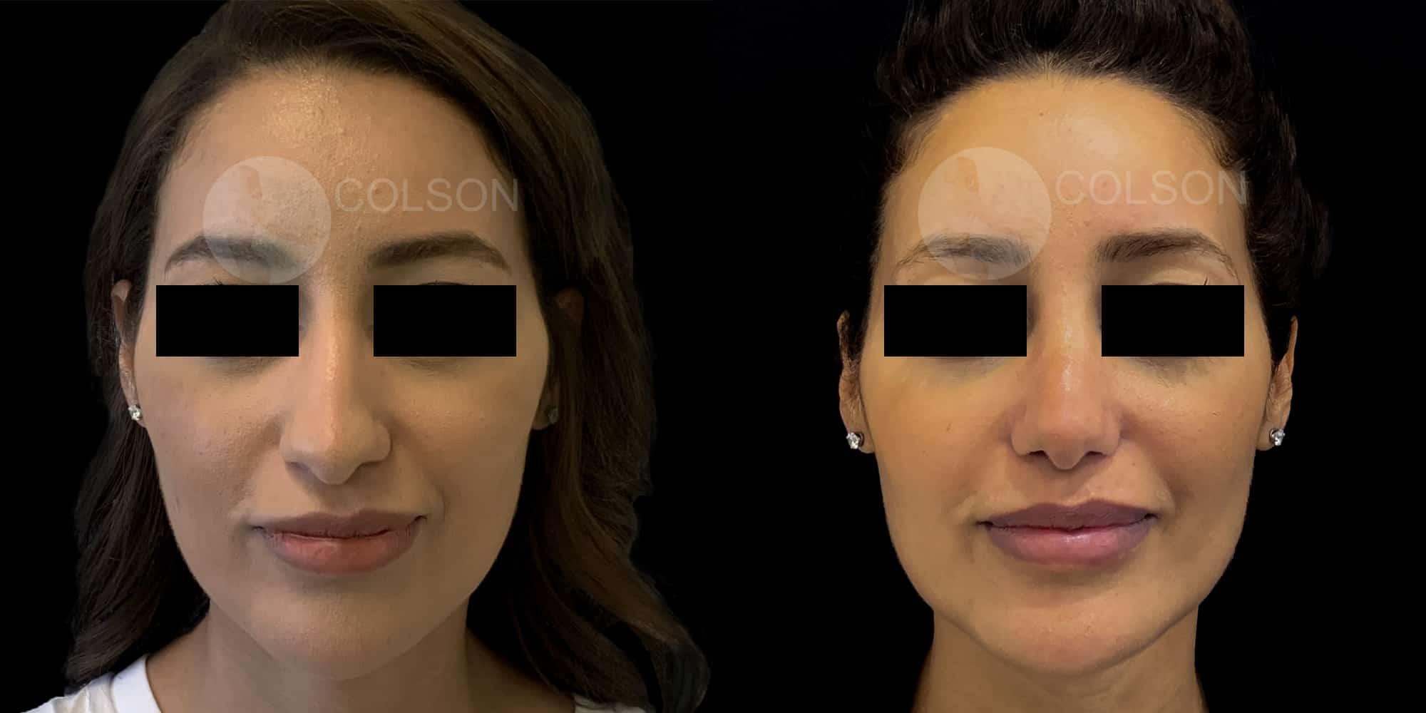 Dr Colson - Chirurgie visage - Rhinoplastie Face