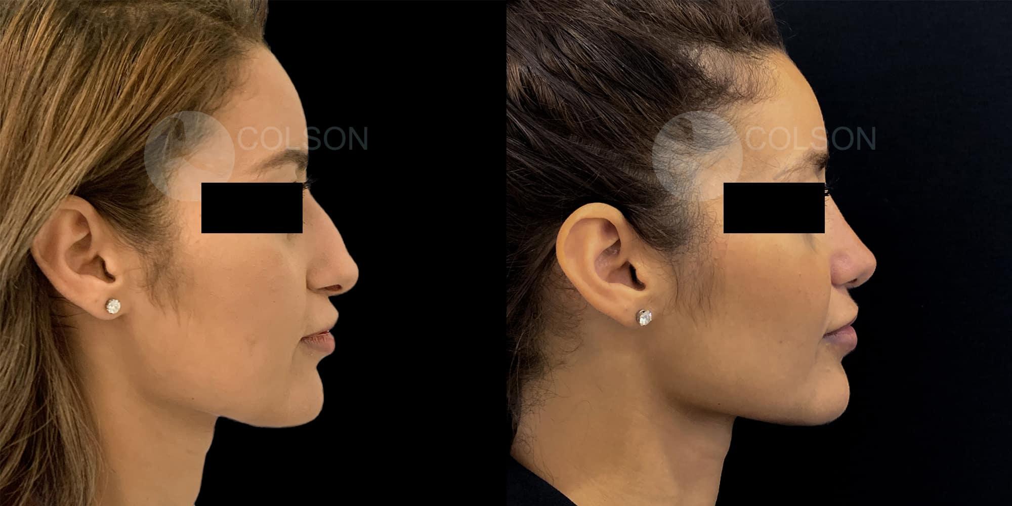 Dr Colson - Chirurgie visage - Rhinoplastie Profil