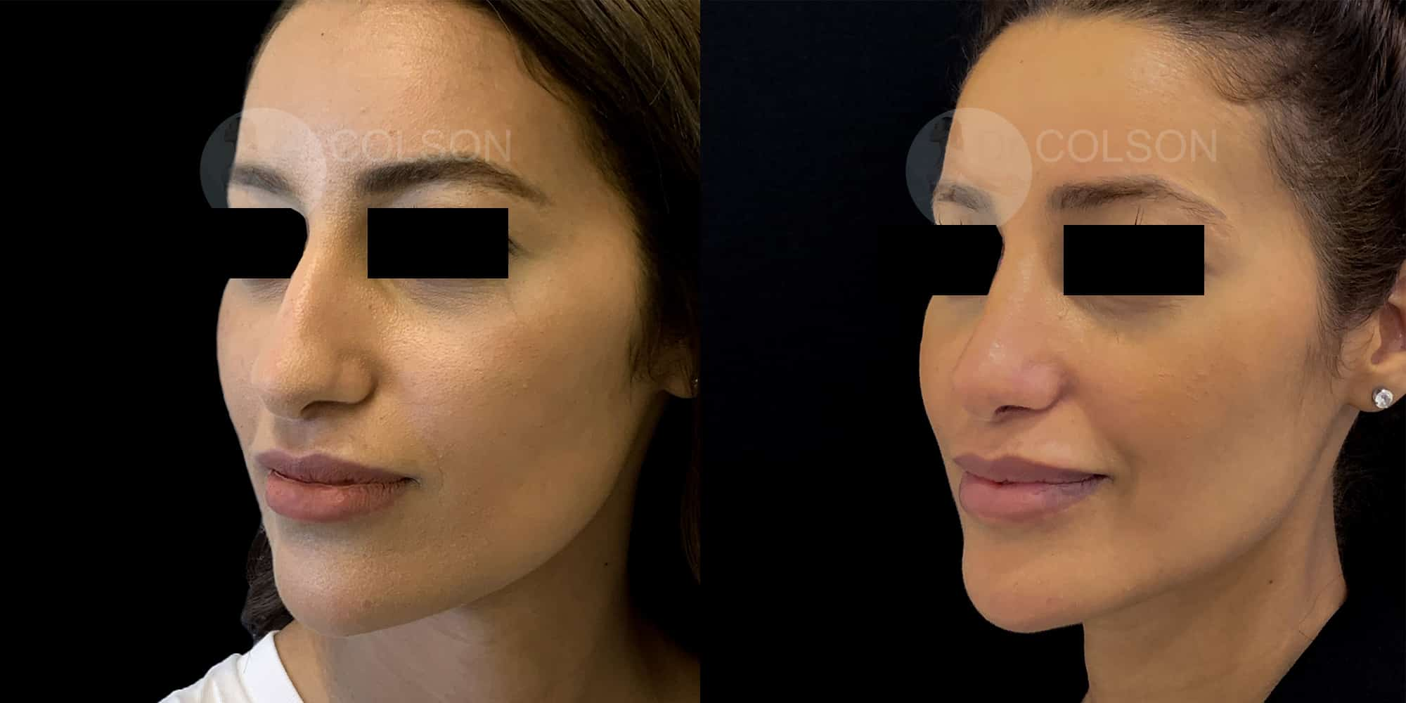 Dr Colson - Chirurgie visage - Rhinoplastie Trois Quart