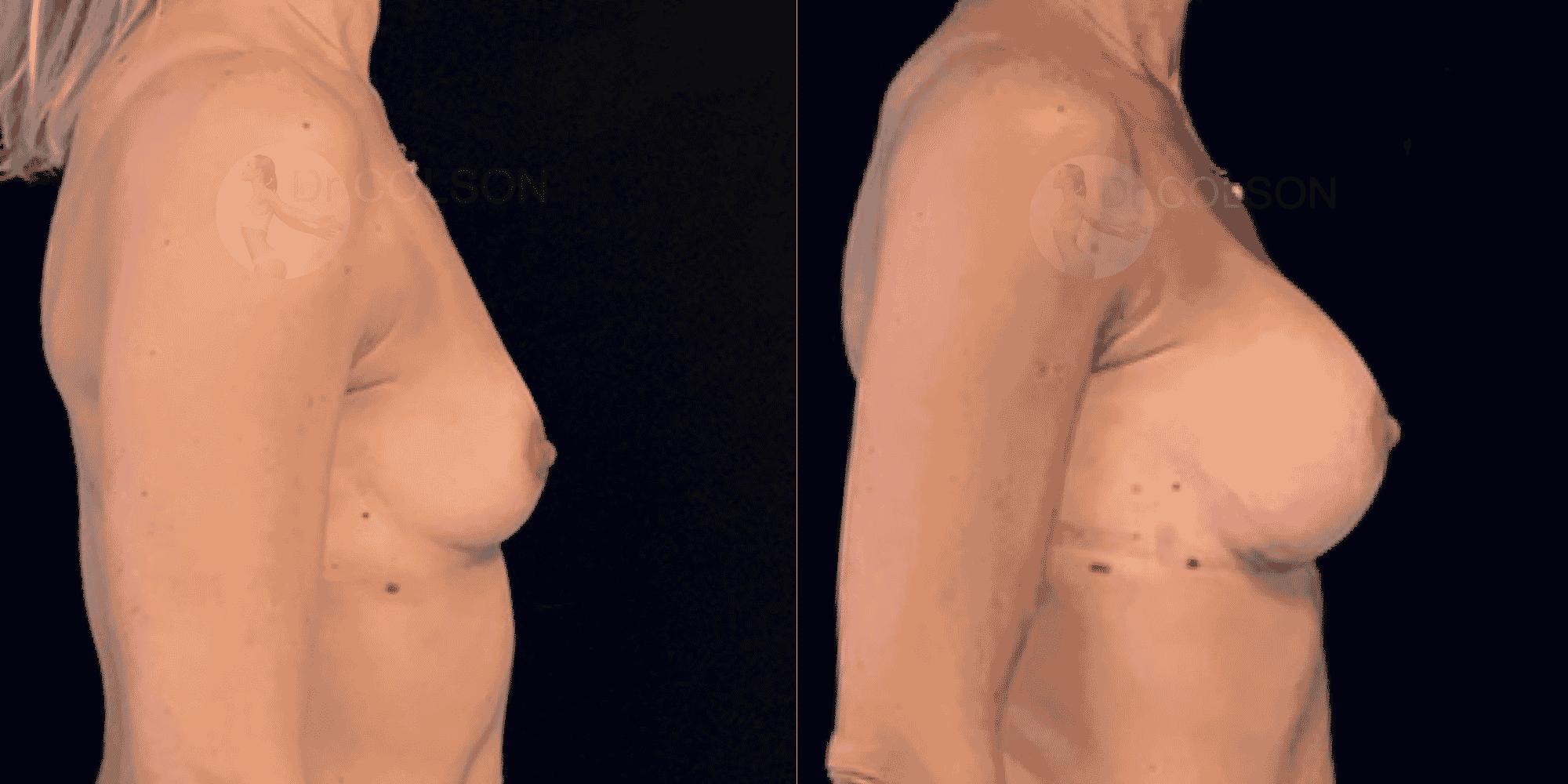 Dr Colson - Chirurgie sein - Augmentation Mammaire Profil
