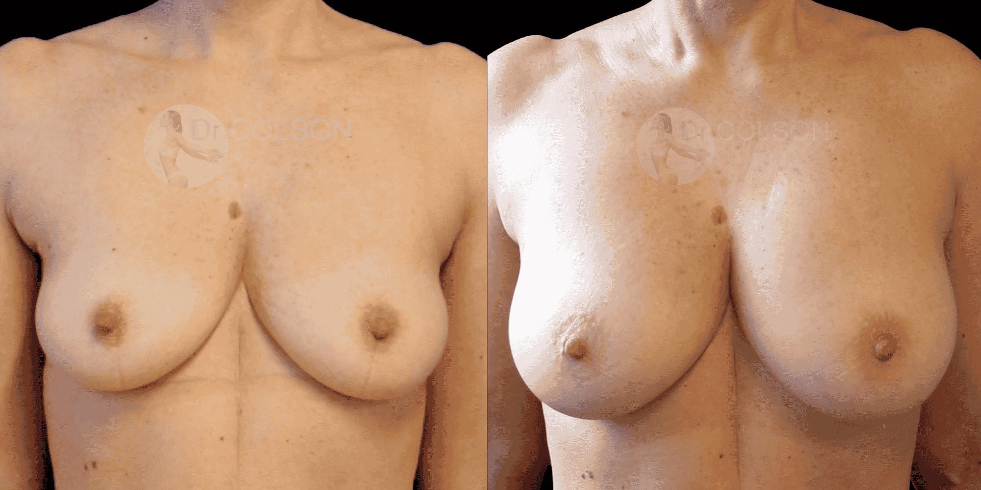 Dr Colson - Chirurgie sein - Lipofilling Mammaire Face