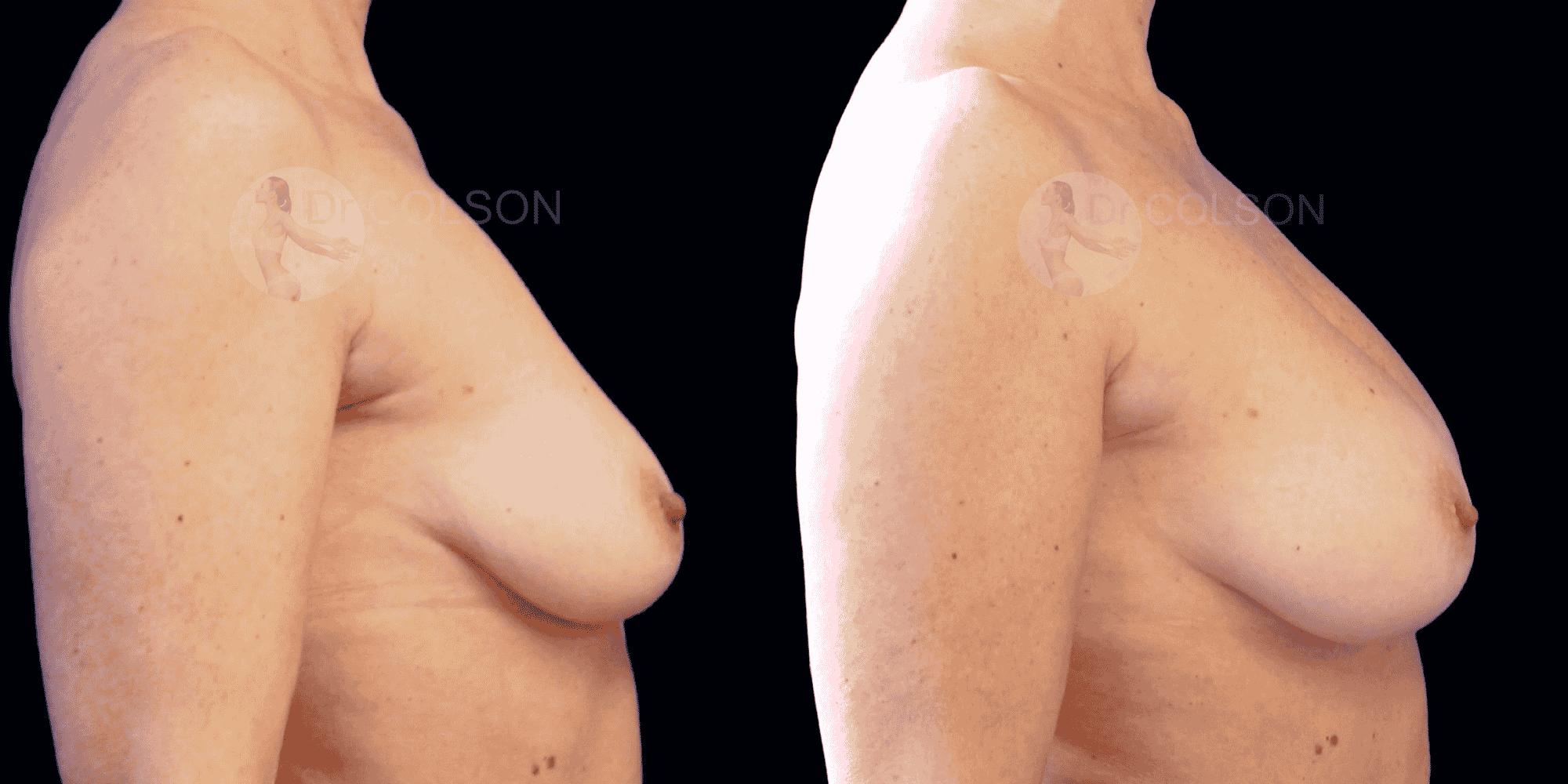 Dr Colson - Chirurgie sein - Lipofilling Mammaire Profil
