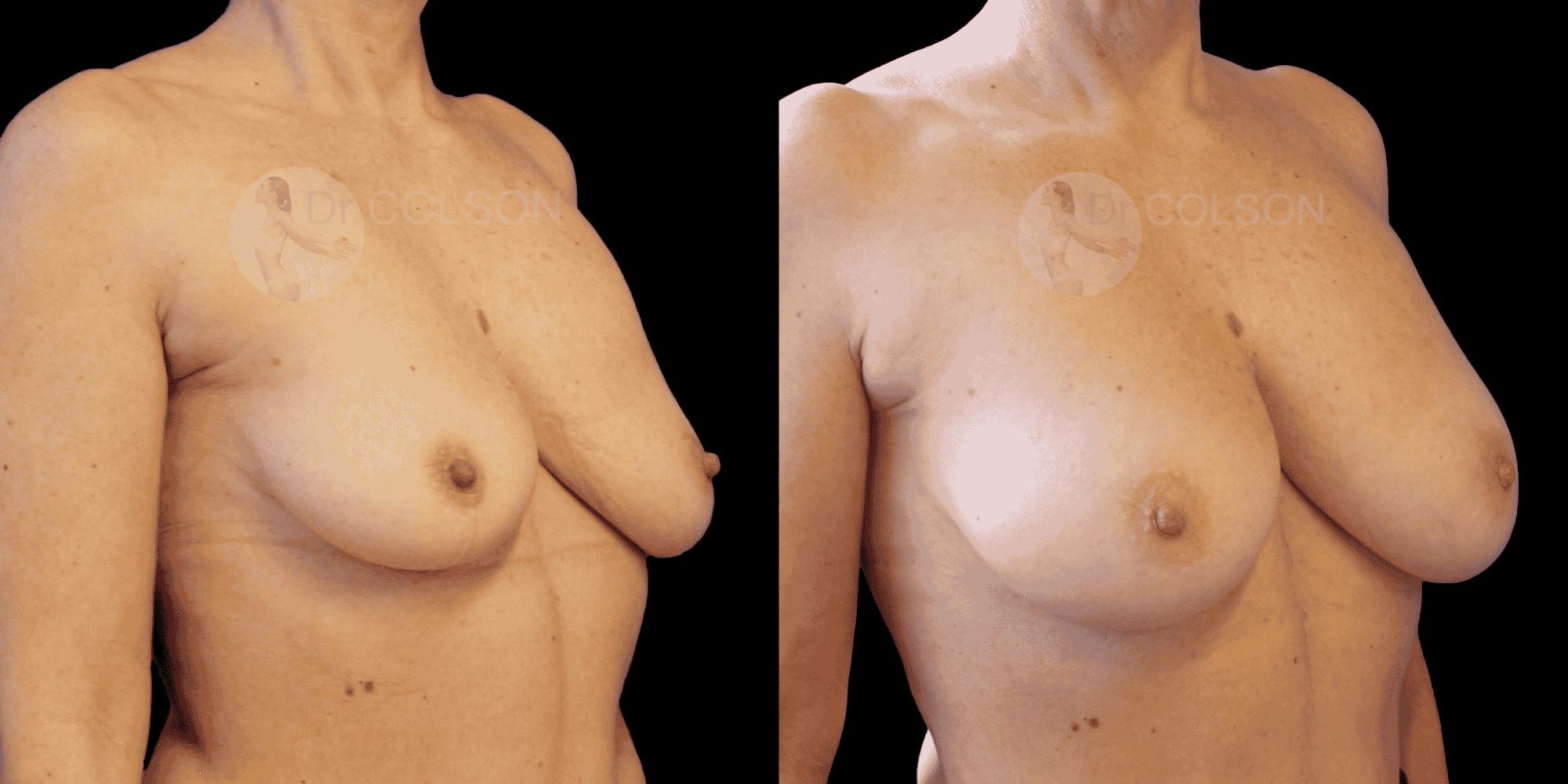 Dr Colson - Chirurgie sein - Lipofilling Mammaire Trois Quart