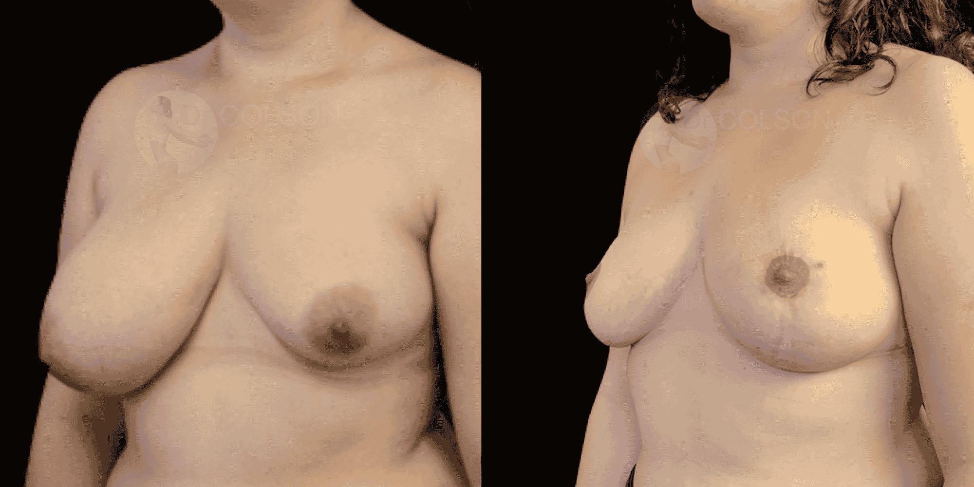 Dr Colson - Chirurgie sein - Asymetrie Trois Quart