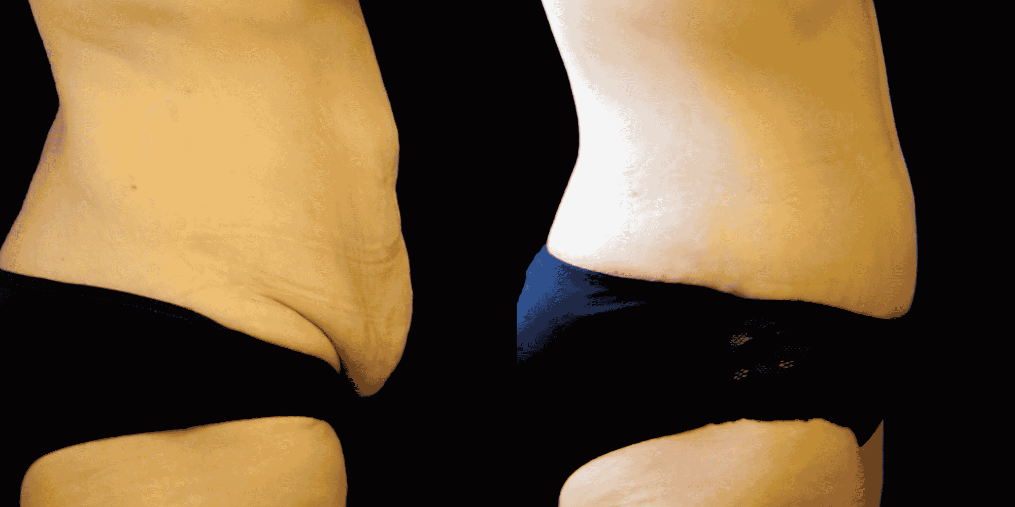 Dr Colson - Chirurgie silhouette - Abdominoplastie Profil