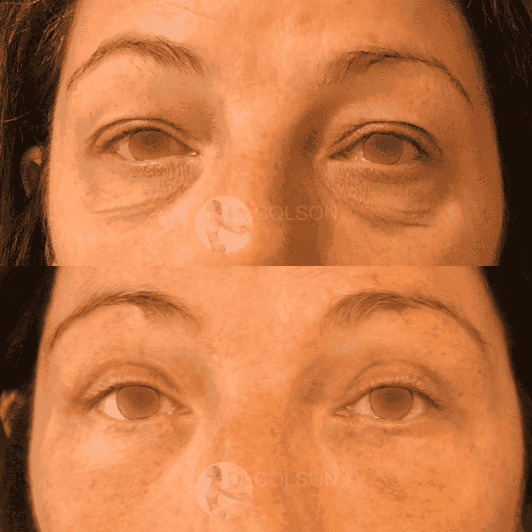 Blepharoplastie Superieure Inferieure Face