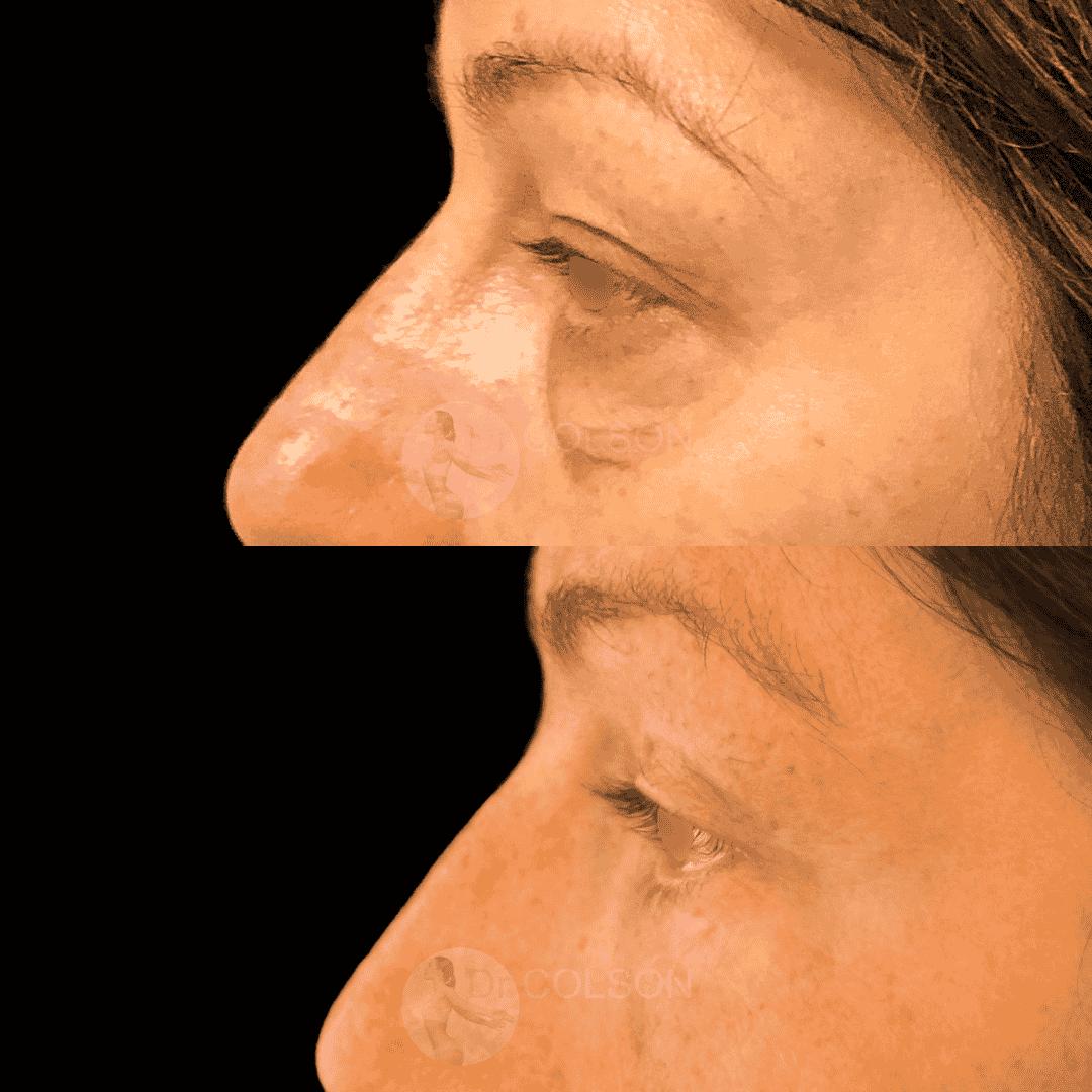 Dr Colson - Chirurgie visage - Blepharoplastie Superieure Inferieure Profil