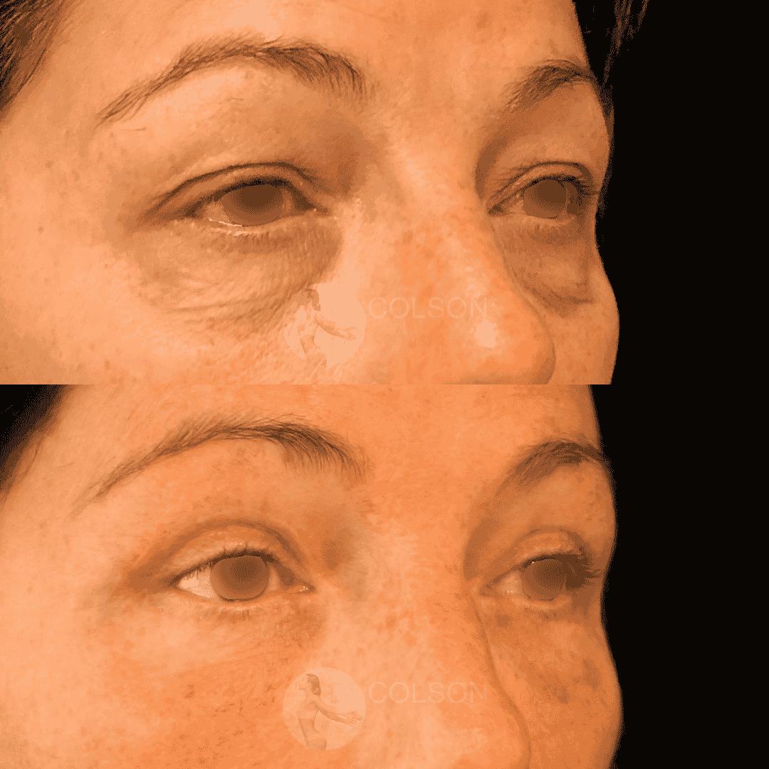 Dr Colson - Chirurgie visage - Blepharoplastie Superieure Inferieure Trois Quart