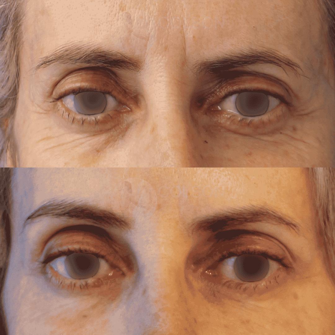 Dr Colson - Toxine botulique - Botox Face