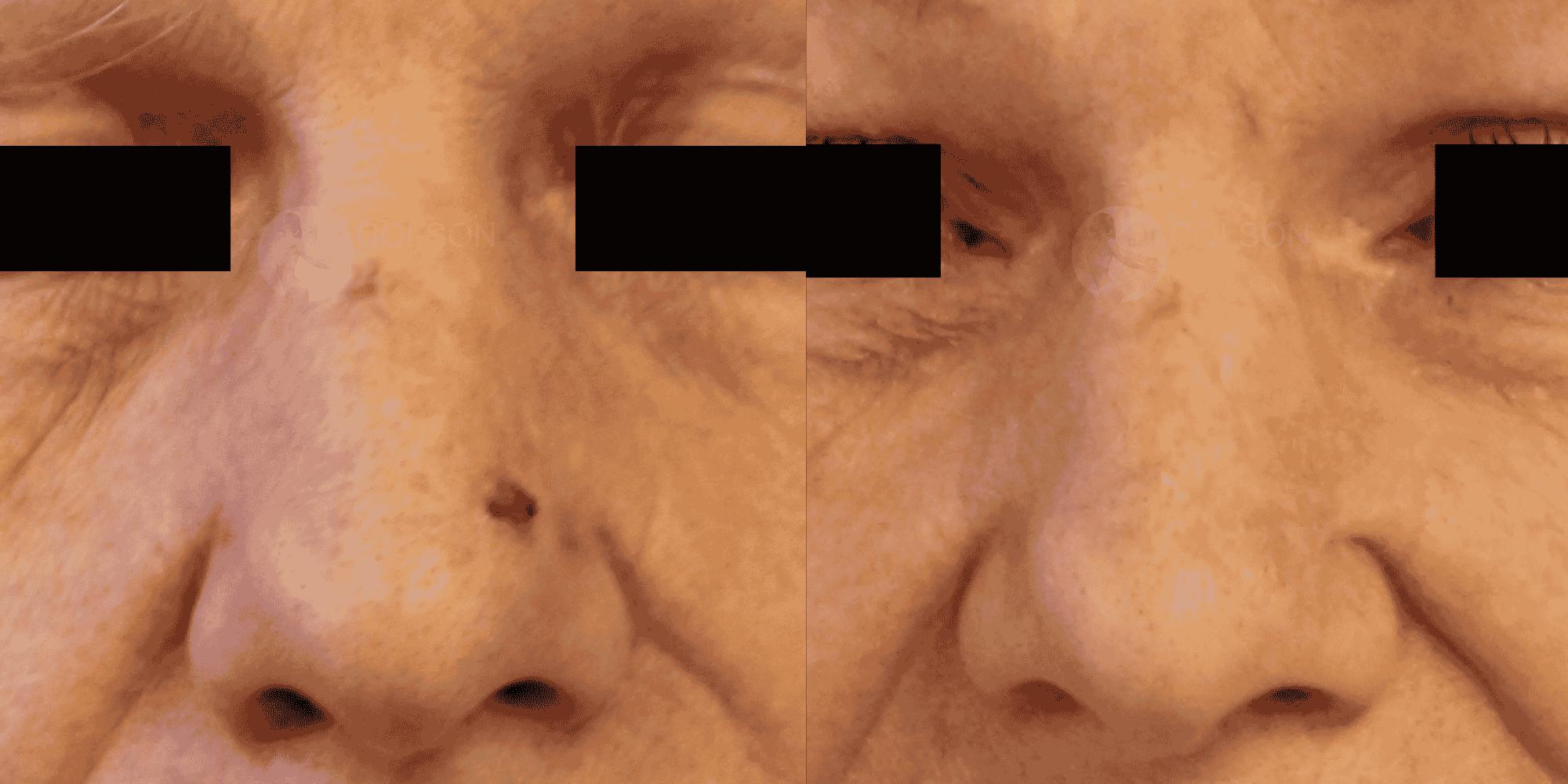 Dr Colson - Chirurgie peau - Tumeur cutanee Face