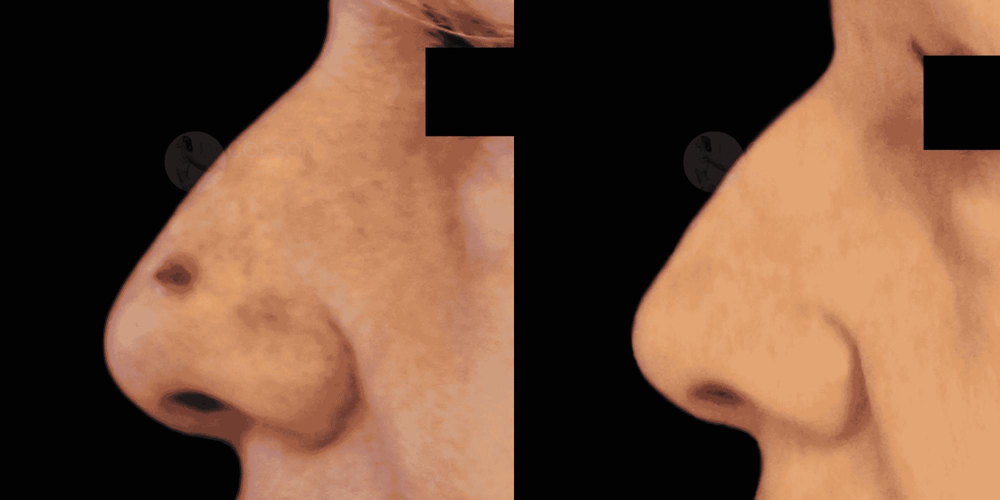 Dr Colson - Chirurgie peau - Tumeur cutanee Profil