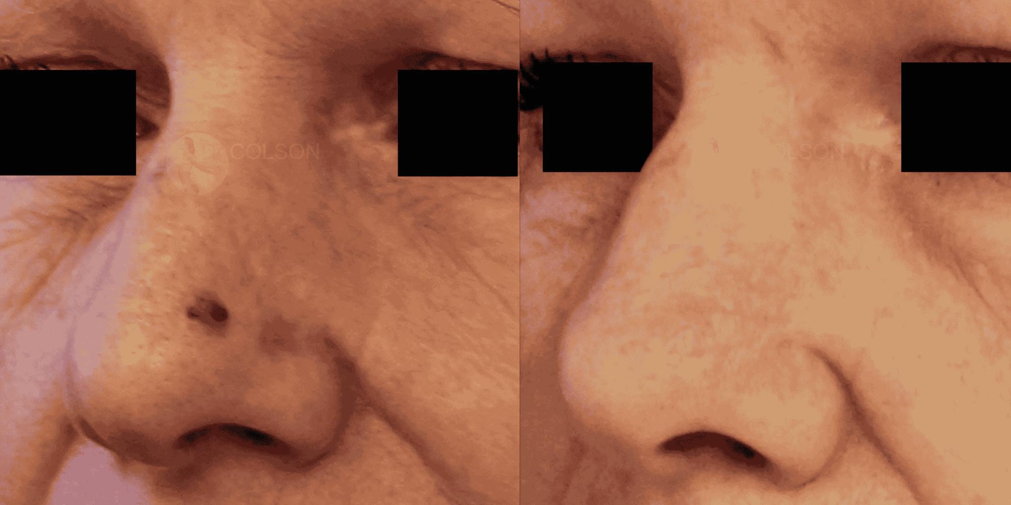 Dr Colson - Chirurgie peau - Tumeur cutanee trois quart