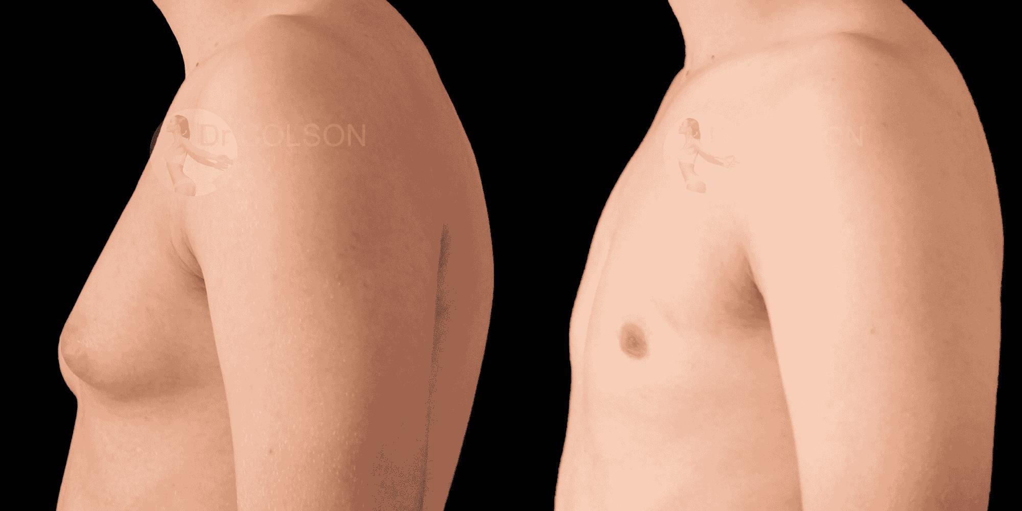 Dr Colson - Chirurgie homme - Gynecomastie Profil