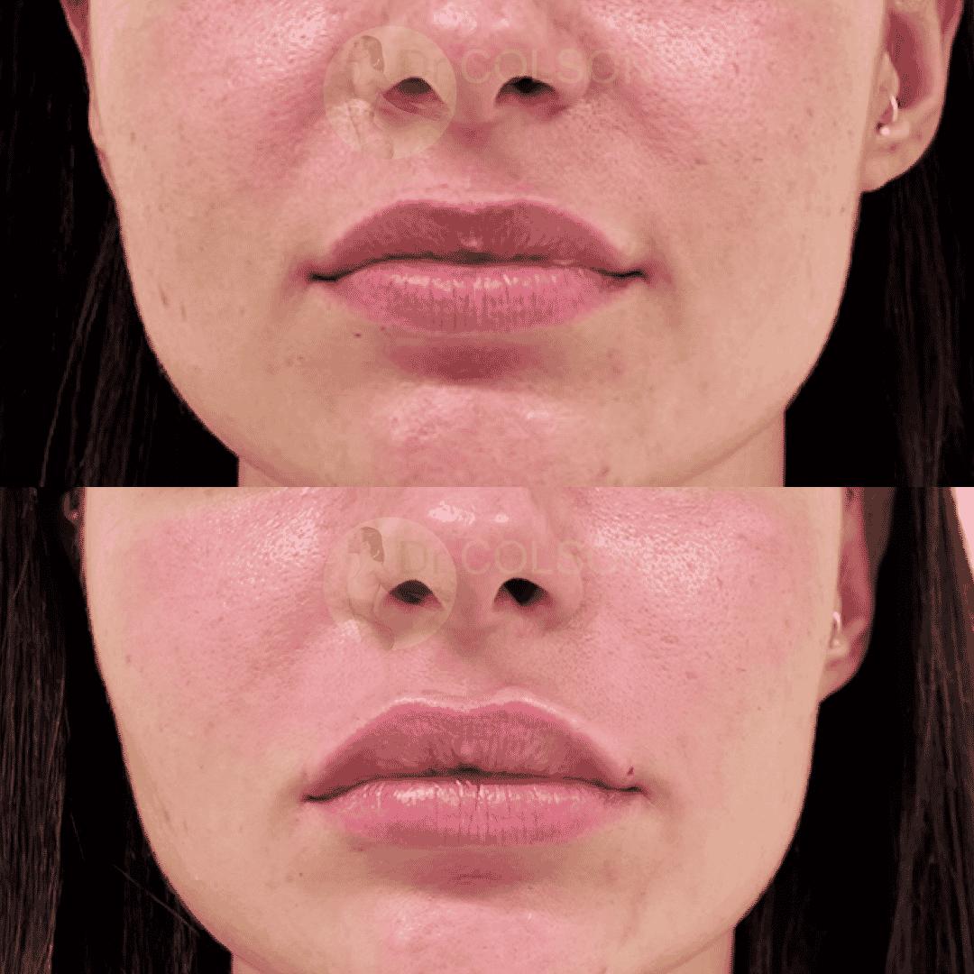 Dr Colson - Acide hyaluronique - Levres Face