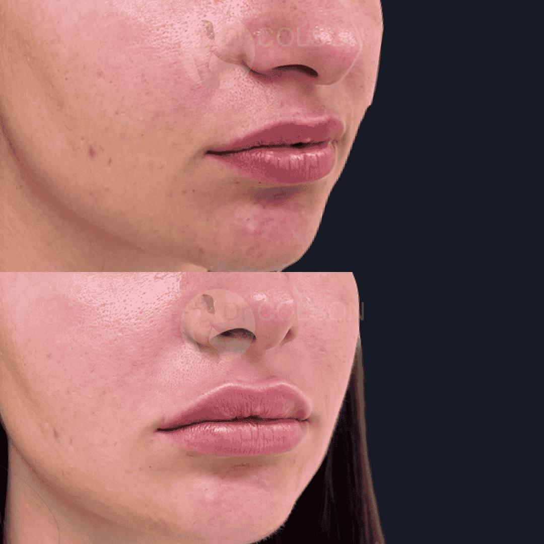 Dr Colson - Acide hyaluronique - Levres Trois Quart
