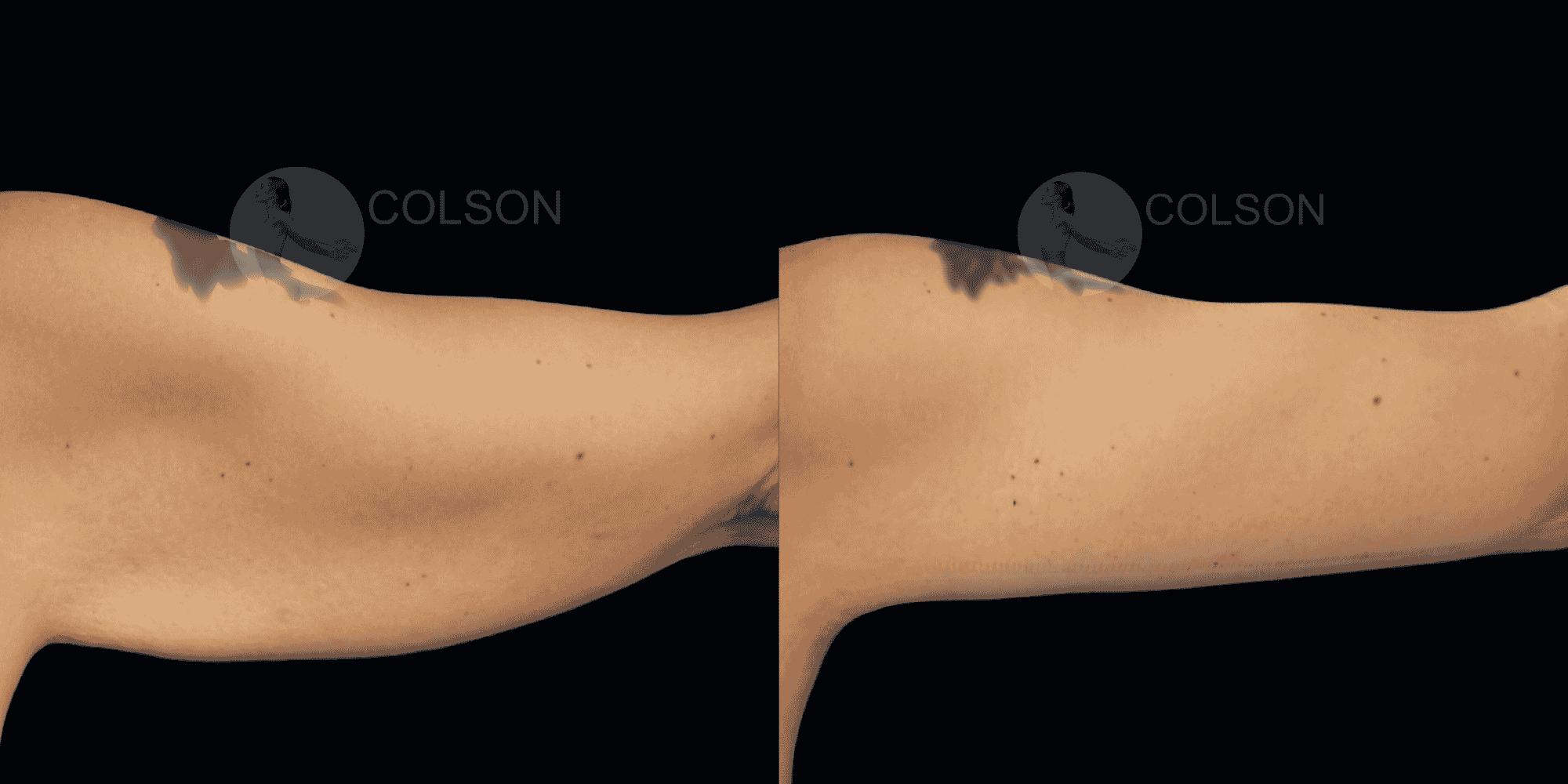 Dr Colson - Chirurgie silhouette - Lifting Bras Vue de Dos 2