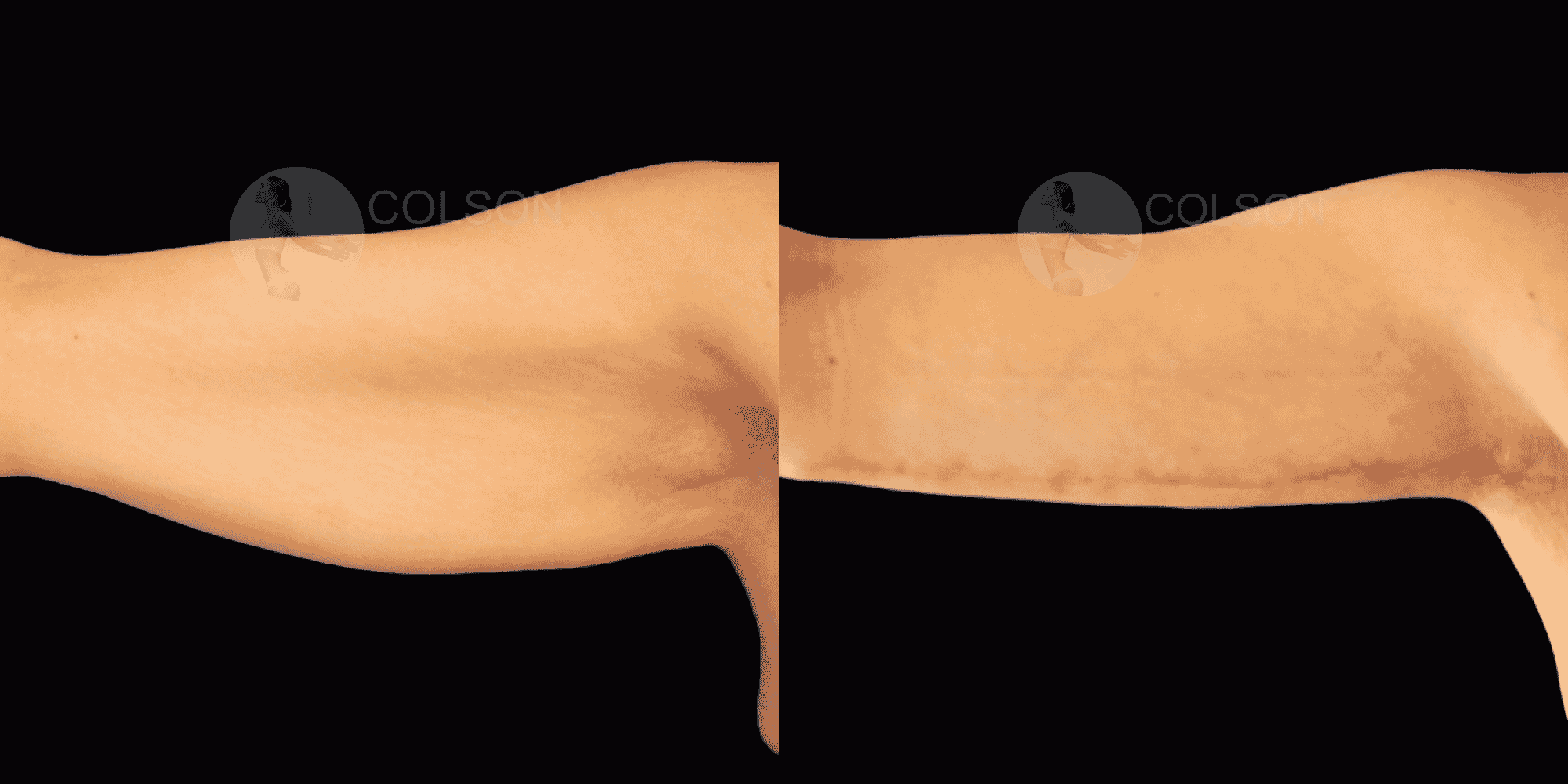 Dr Colson - Chirurgie silhouette - Lifting Bras Vue de Face