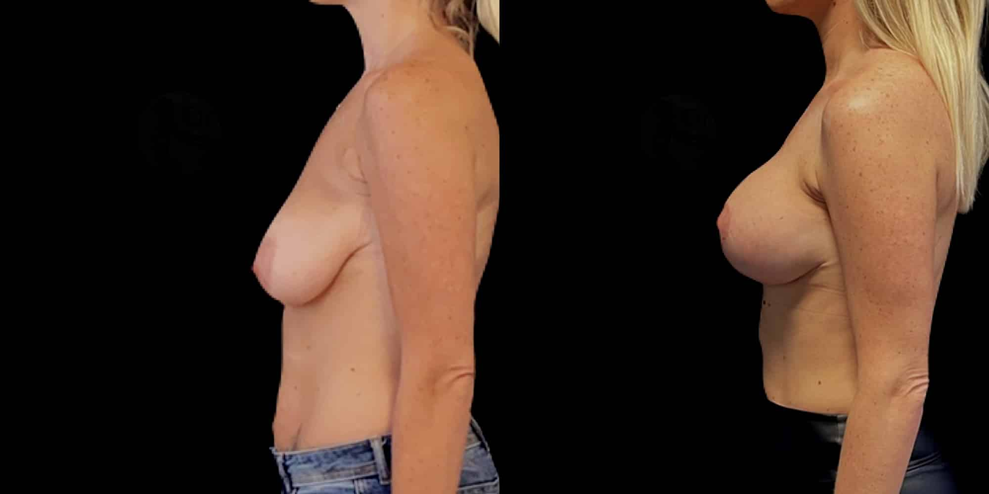 Dr Colson - Chirurgie sein - Lifting Mammaire Prothese Profil