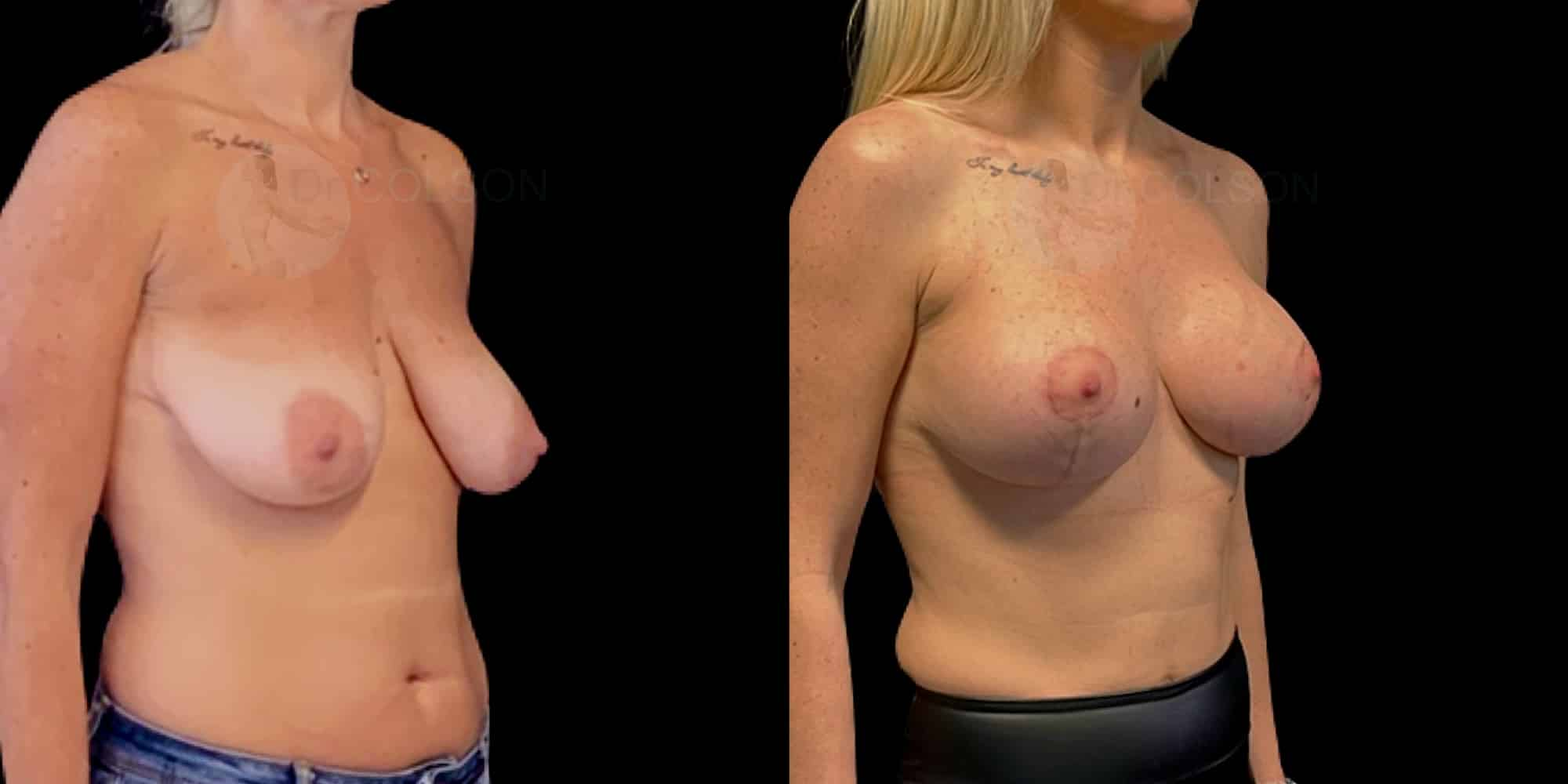 Dr Colson - Chirurgie sein - Lifting Mammaire Prothese Trois Quart