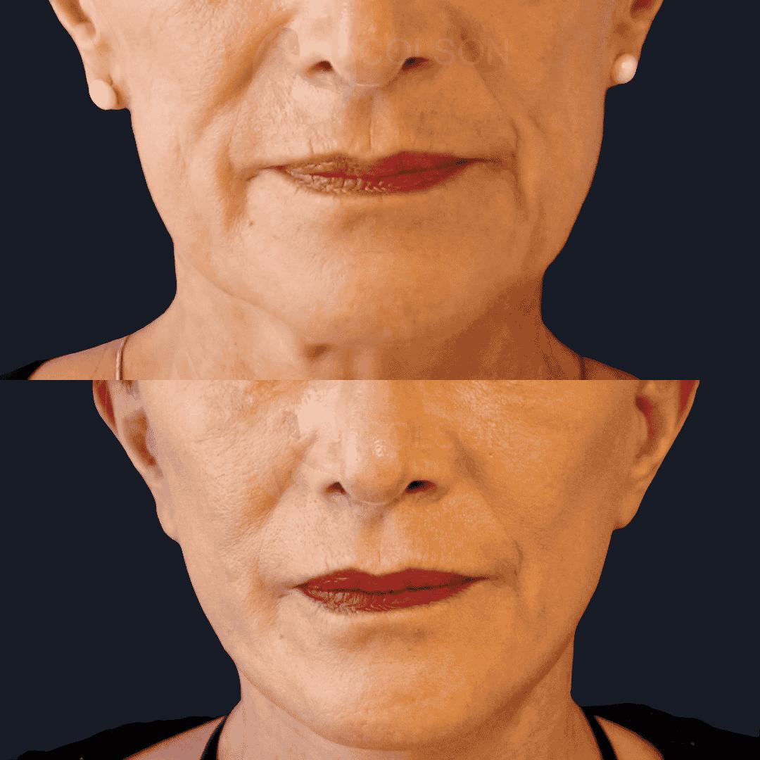 Dr Colson - Chirurgie visage - Lifting Visage Face