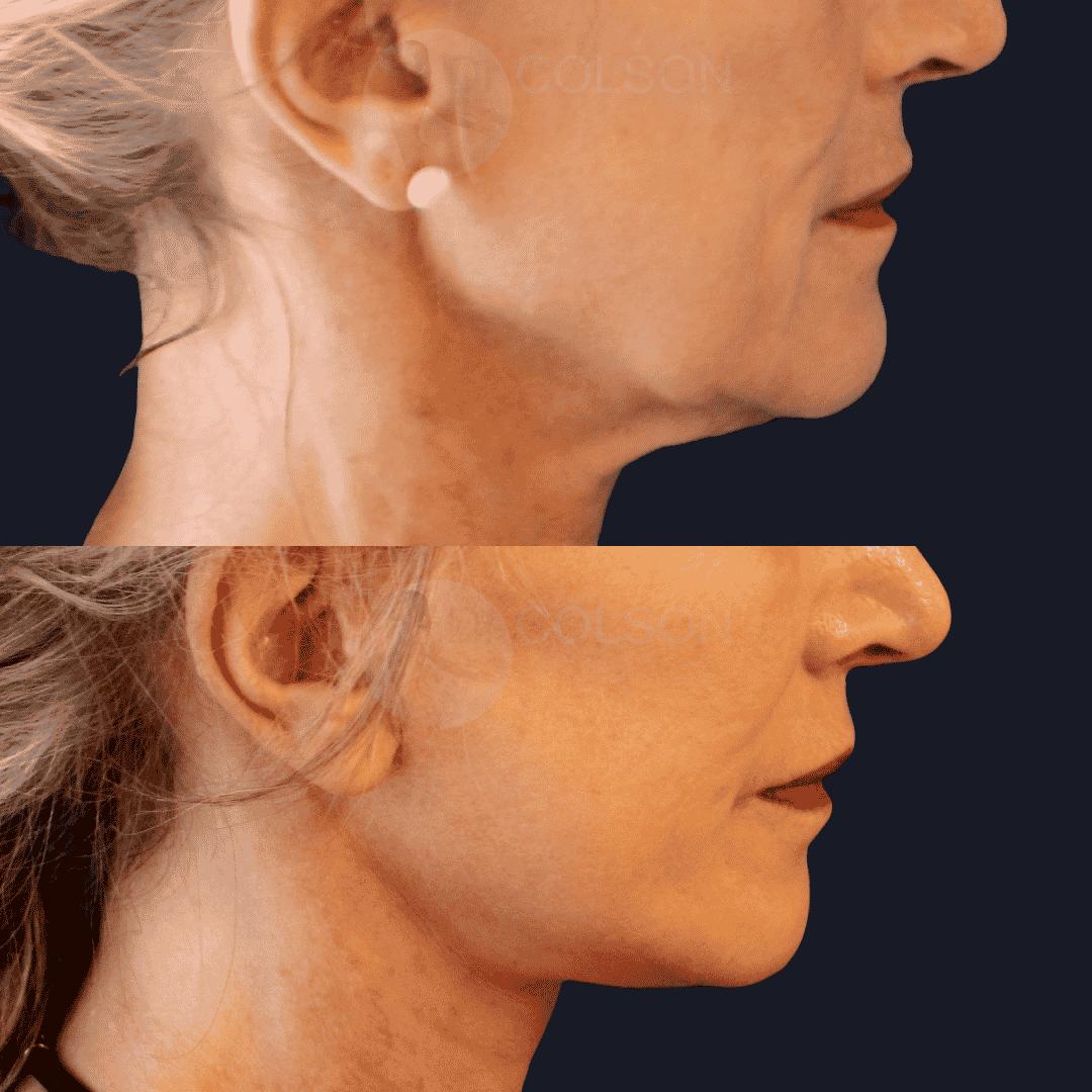 Dr Colson - Chirurgie visage - Lifting Visage Profil