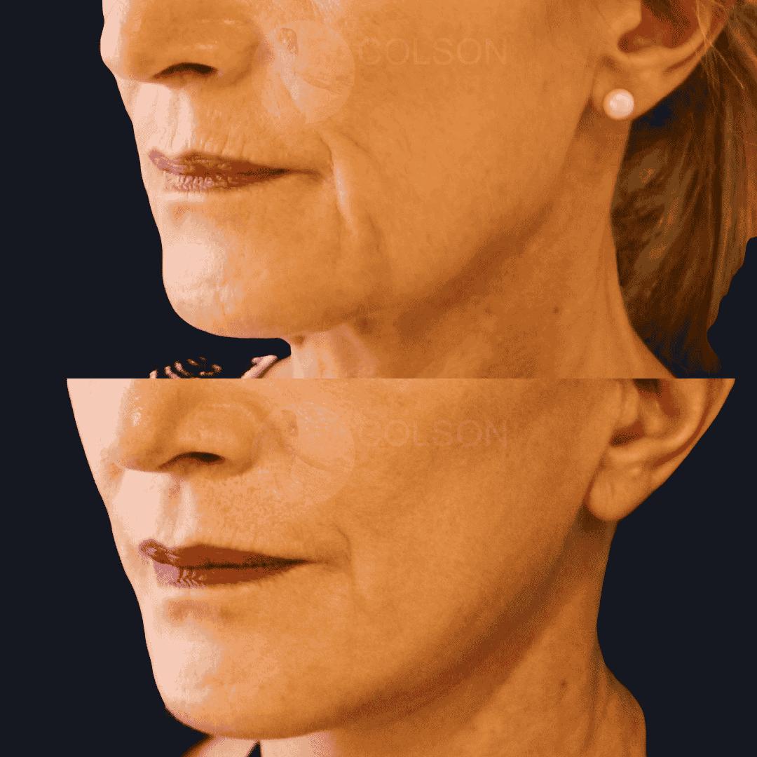 Dr Colson - Chirurgie visage - Lifting Visage Trois Quart
