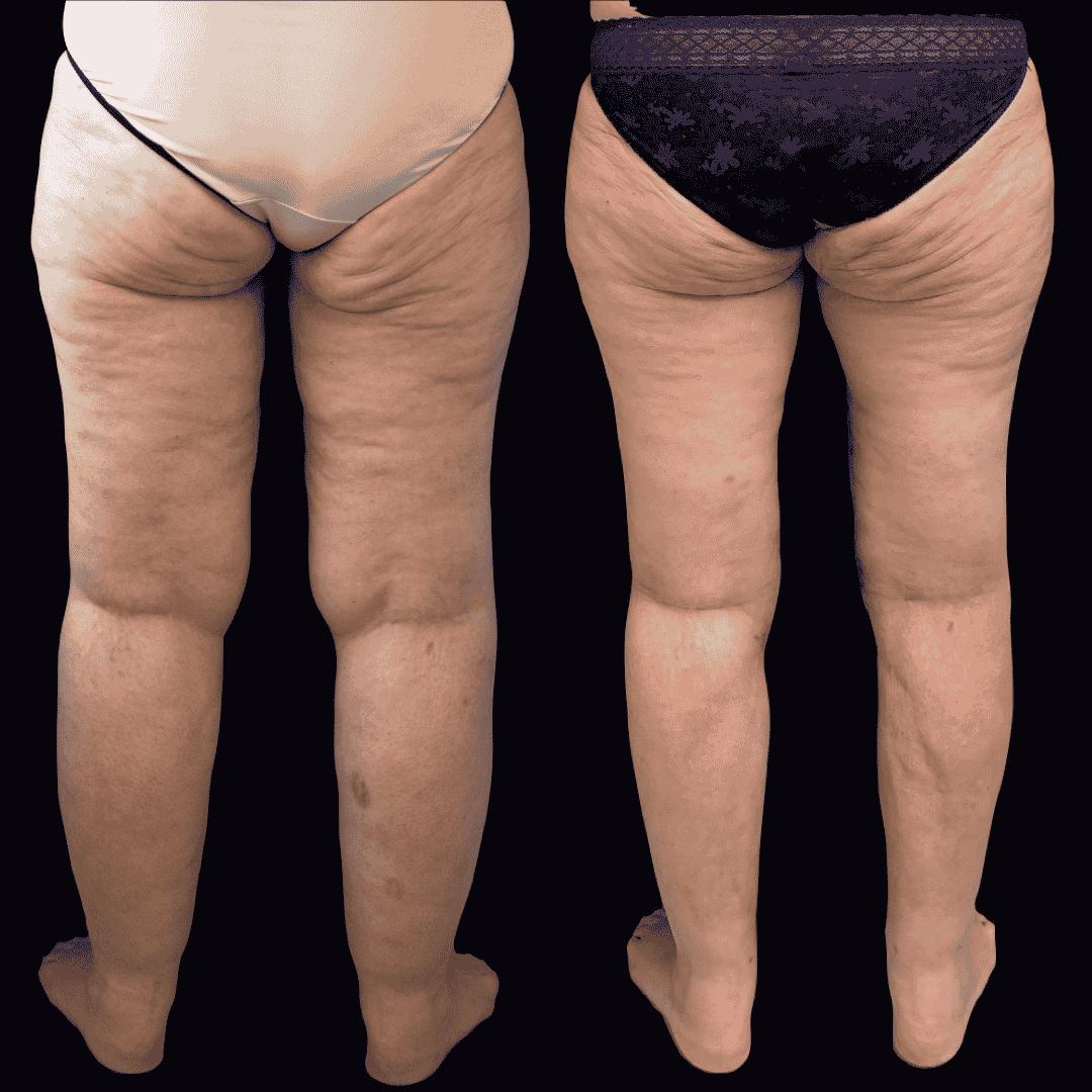 Dr Colson - Chirurgie silhouette - Lifting de Cuisse Vue de Dos