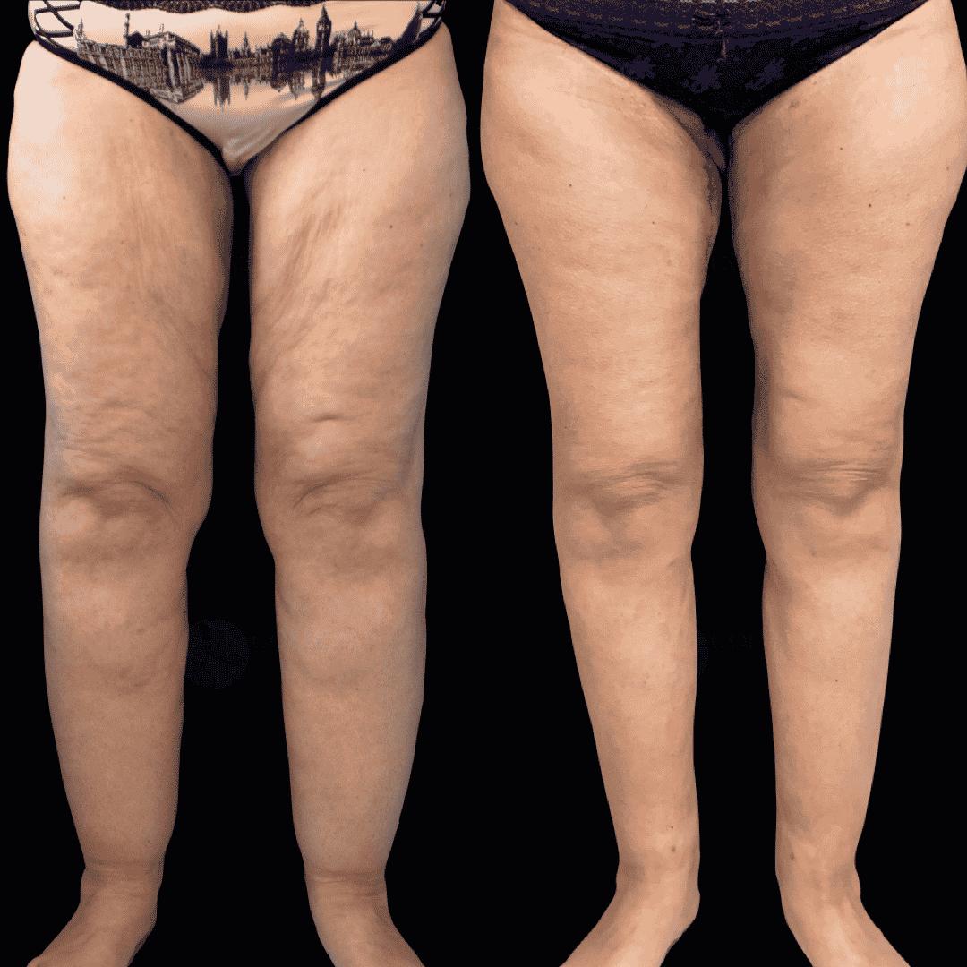 Dr Colson - Chirurgie silhouette - Lifting de Cuisse Vue de Face