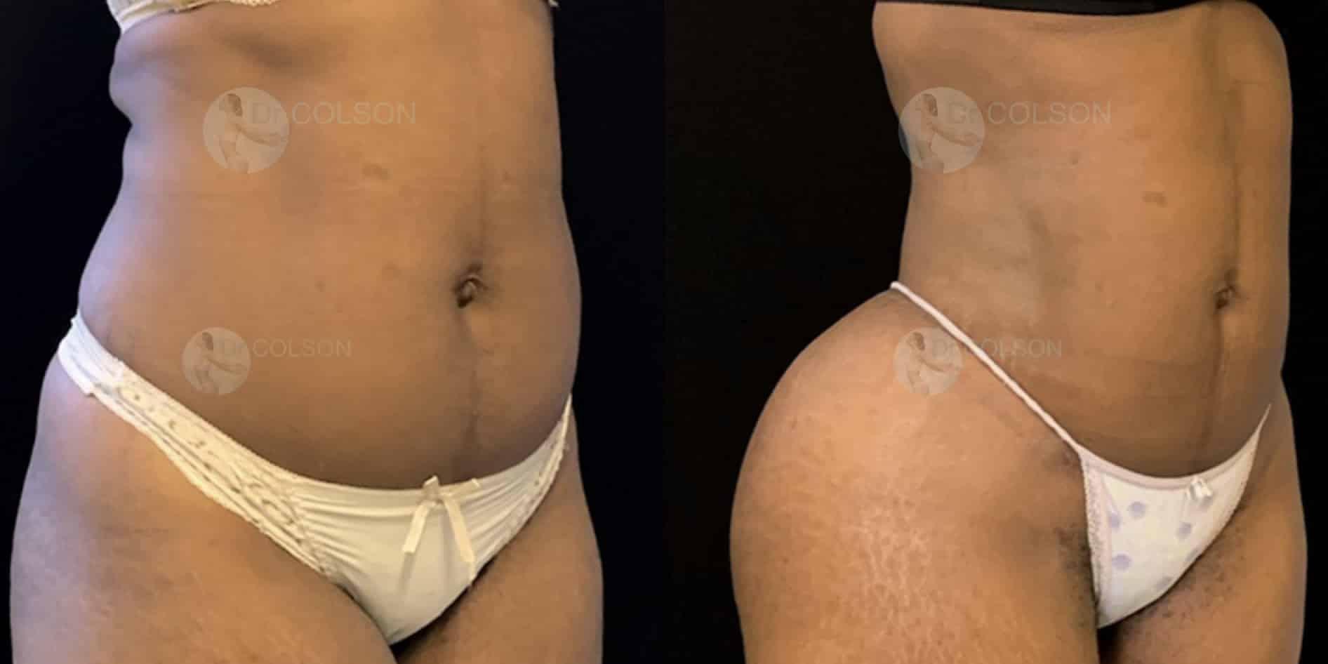 Dr Colson - Chirurgie silhouette - Lipofilling Fesses BBL Trois Quart Face