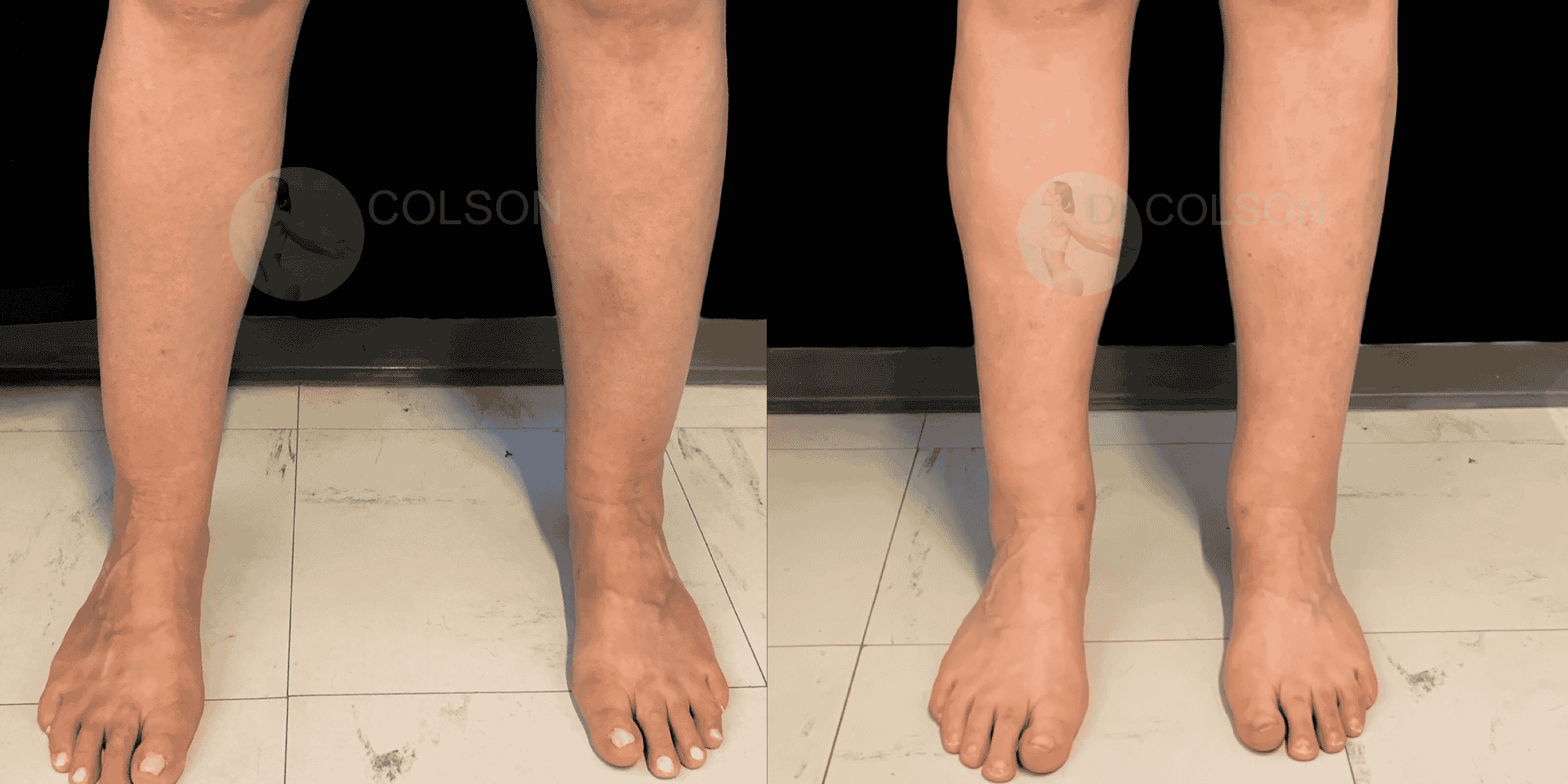 Dr Colson - Chirurgie silhouette - Liposuccion Mollet Face
