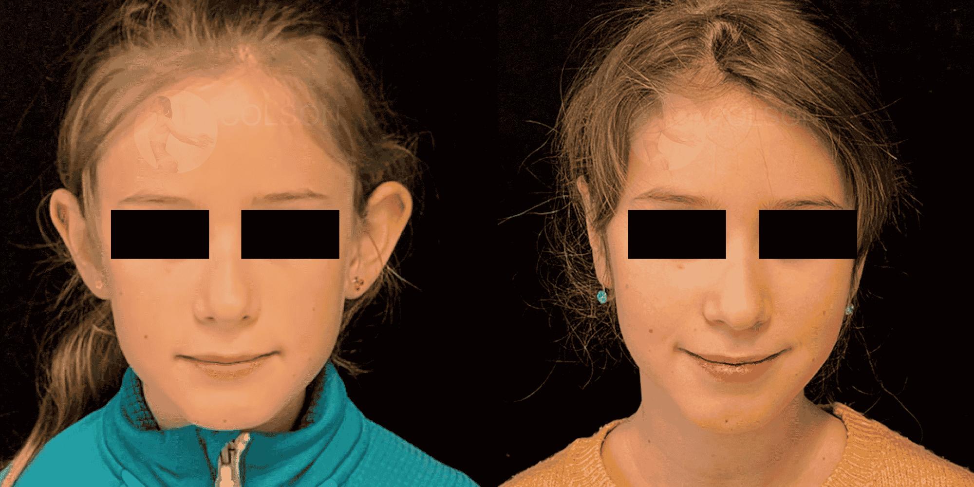 Dr Colson - Chirurgie visage - Otoplastie Face