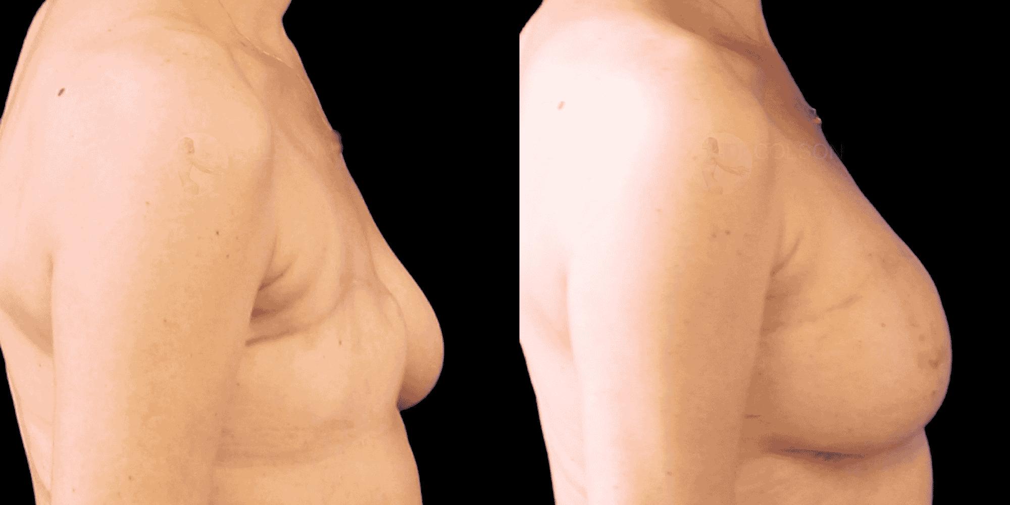 Dr Colson - Chirurgie sein - Reconstruction Mammaire Par Lipofilling Profil