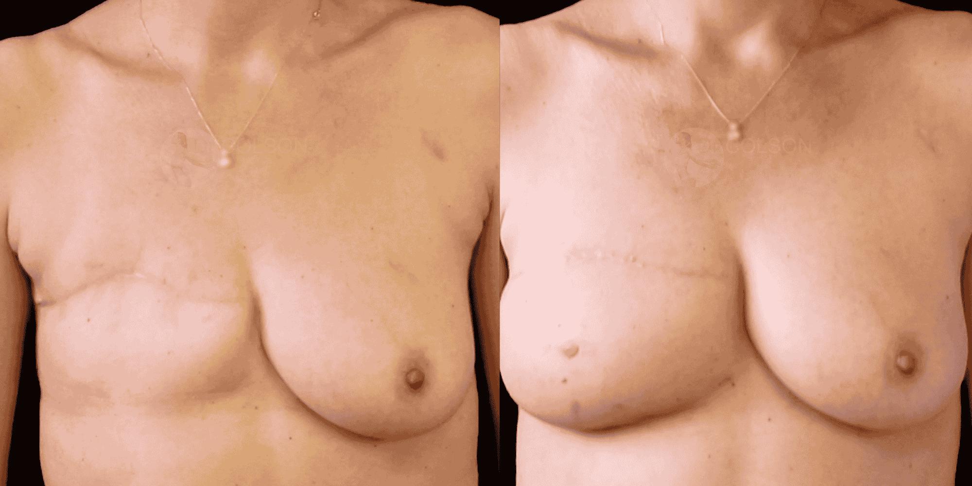 Dr Colson - Chirurgie sein - Reconstruction Mammaire par Lipofilling Face