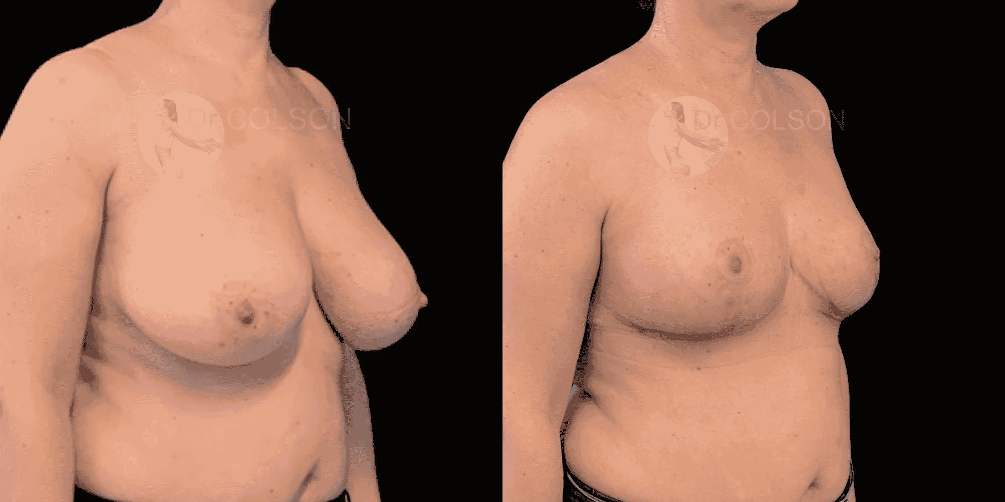 Dr Colson - Chirurgie sein - Reduction Mammaire Trois Quart