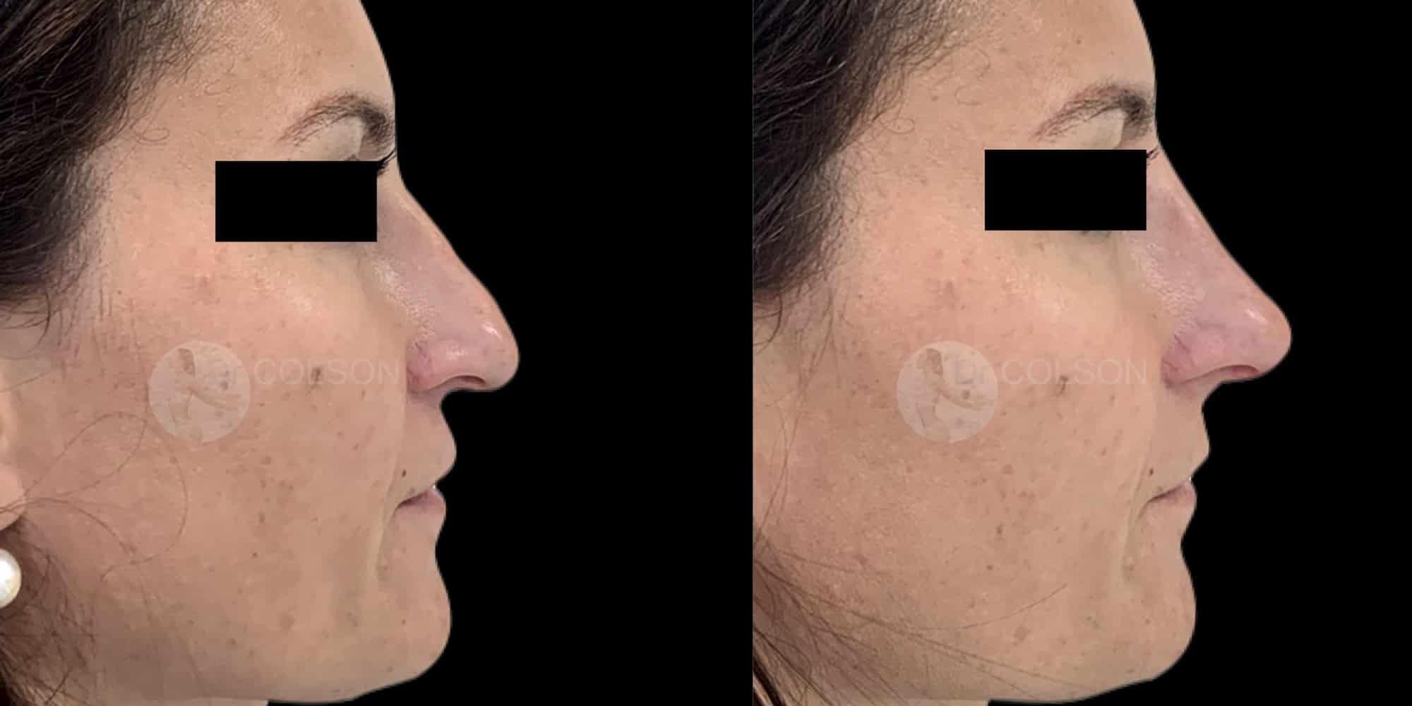 Dr Colson - Acide hyaluronique -Rhinomodulation Profil 2